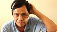 Nguyen Van Tam with injuries on his head and face after being attacked by a Belgian man living in an apartment building where he works as a guard. People in Nha Trang are complaining about increasing