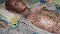 Van Viet Dien, 42, started to shed his skin last year. Hospital doctors say the condition is due to parasites. (Photo: VnExpress)