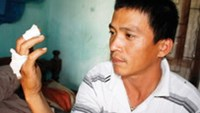 Nguyen Xuan Ly of Quang Nam Province shows his injured hand, which he claims resulted from an exploding cigarette.