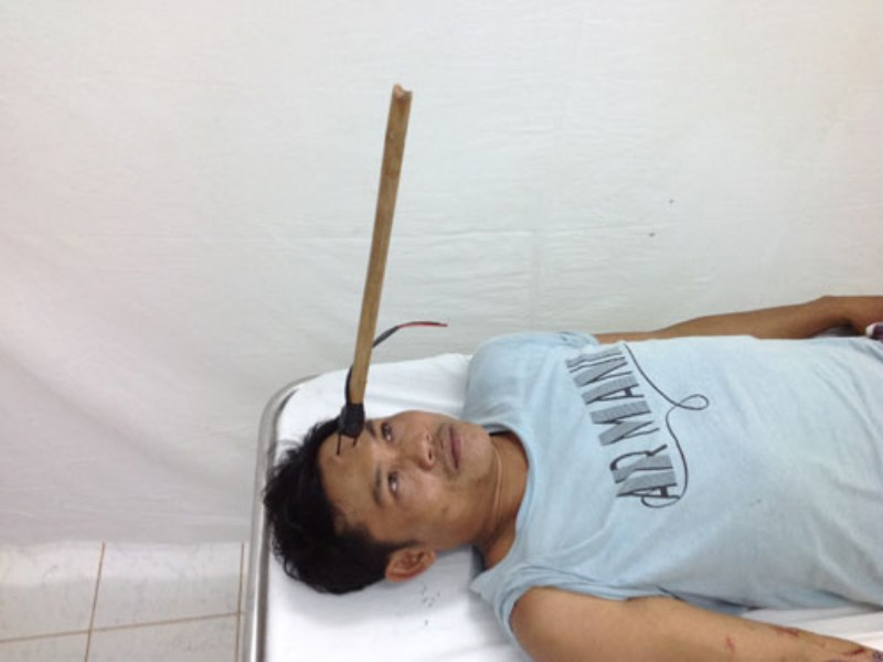 A photo provided by a Tay Ninh hospital shows Nguyen Tuan Duong, 36, being hospitalized with a pitchfork protruding from his forehead on September 9, 2014.