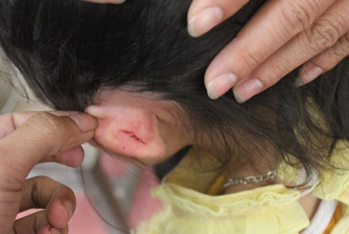 Nguyen Thi Thanh Luyen, 40, reportedly grabbed the little girl's left ear, causing bleeding. Photo credit: VnExpress