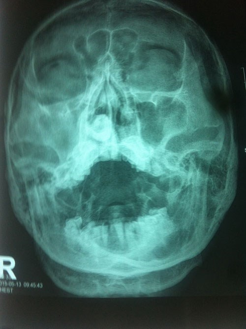 An X-ray film shows the stone on the left side of the nose. Photo provided by doctors.