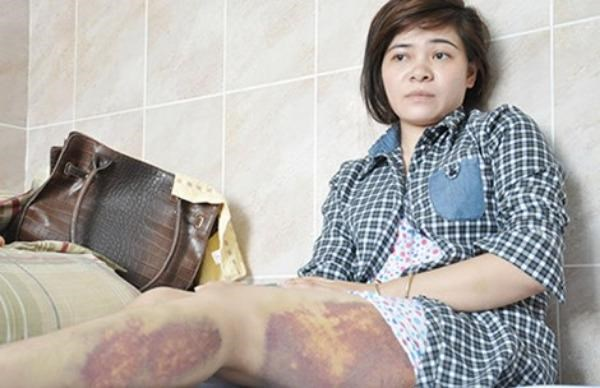 Lai Thi Thu shows bruises on her leg on October 26, a week after being tortured by police officer Ly Cong Van on October 19, 2015. Photo credit: VTC News
