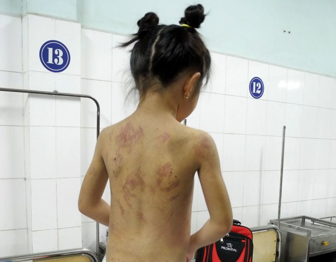 A photo taken from the back of an eight-year old girl, showing bruises caused by her stepmother torture. Photo credit: Tuoi Tre.