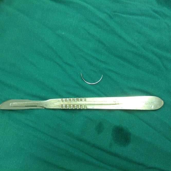A surgical needle (above) removed from a patient's intestine in Can Tho. Photos provided by the hospital
