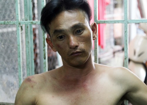 Le Hoang Vu, a drug user, was caught on August 28 while attempting to steal a motorbike. Photo credit: VnExpress