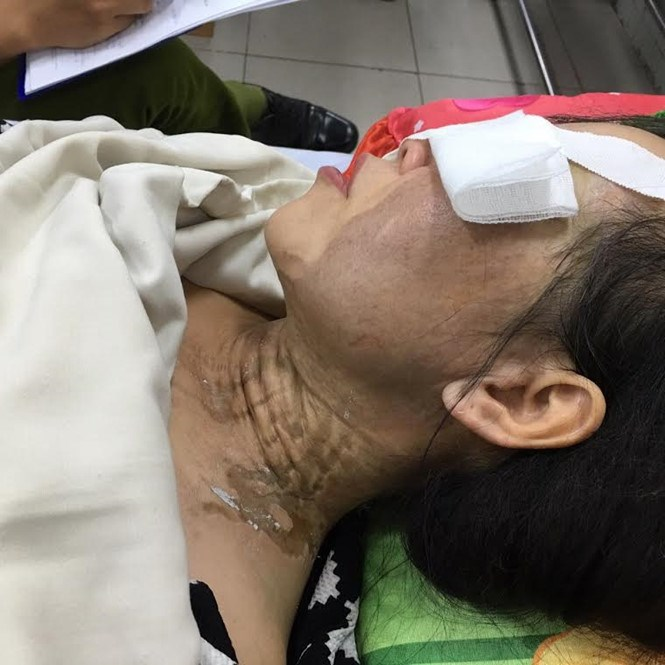 Nguyen Thi Thu Ha, 38, is being treated at Ho Chi Minh City's Cho Ray Hospital after being attacked with acid. Photo: Cong Nguyen