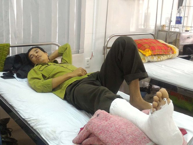 Le Anh Tuan, a park ranger at Bach Ma National Park, is hospitalized after being attacked by timber poachers on March 2. Photo: Bui Ngoc Long