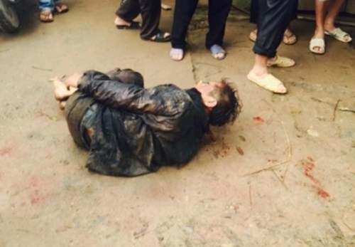 Vo Van Tinh, 47, was beaten for stealing a dog in Bac Giang Province on April 5, 2016. Photo credit: Nguoi Lao Dong