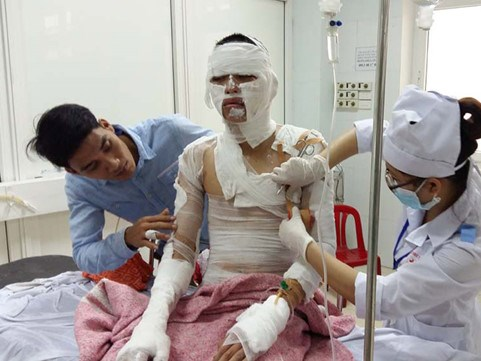 A worker is treated for burns at the 115 Hospital on April 18. Photo: Khanh Hoan/Thanh Nien