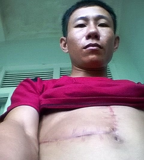 Phan Doanh, a worker of a forestry company in Quang Tri, shows scars from injuries caused by the buffalos. Photo credit: Dan Tri