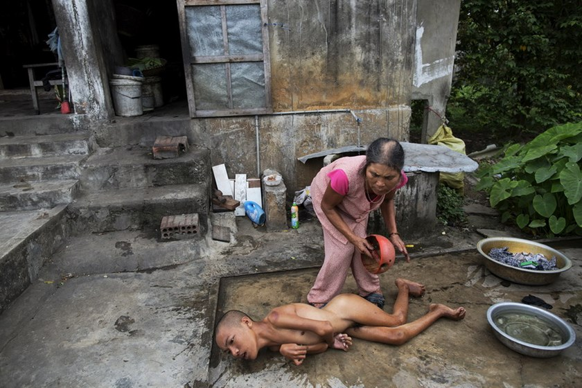 Tang Thi Thang baths her disabled son Doan Van Quy outside their family home in Vietnam's Quang Binh Province. Photo: Reuters
