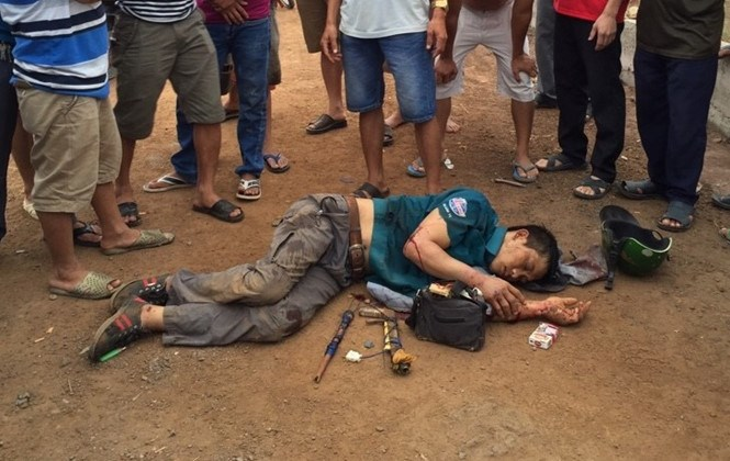 Le Dinh Son was beaten unconscious in Dong Nai's Bien Hoa Town early Wednesday. Photo: Le Lam