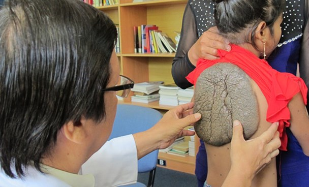The congenigal growth on the back of the 10-year-old girl. Photo: Nguyen Mi
