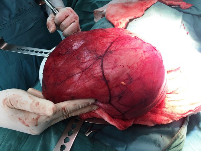 The 10-kg tumor removed from the woman's abdomen. Photo: Khanh Hoan