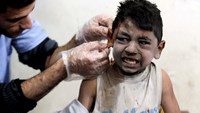 Doctors treat wounded child in Damascus bombing