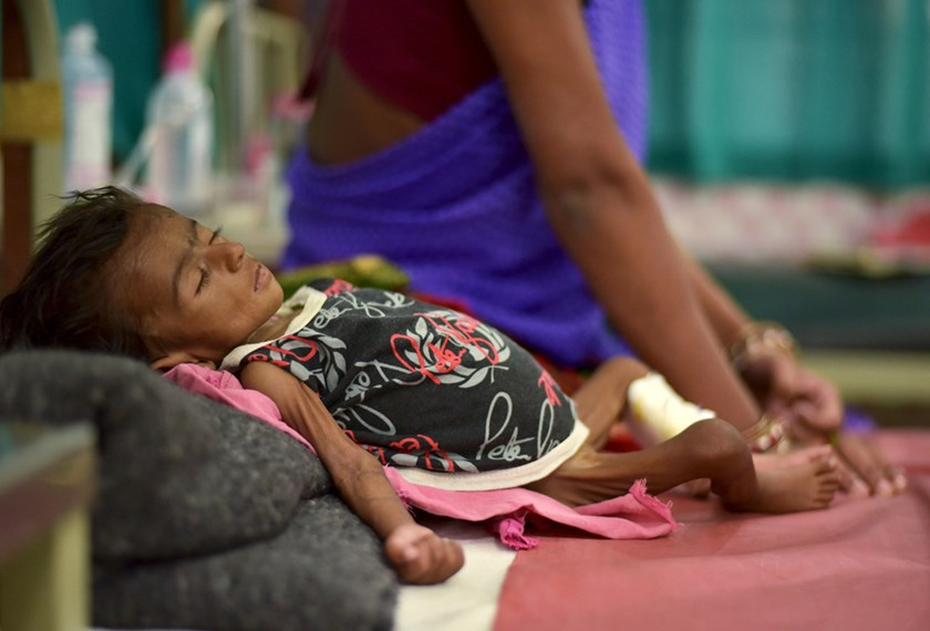 Two-month-old Jyoti lies in a bed in a malnutrition intensive care unit in Dharbhanga Medical College in Dharbhanga in the eastern state of Bihar, India, April 16, 2015. Photo: Reuters
