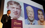 Firefighter gets world's most extensive face transplant