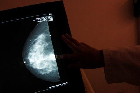"A monitor shows the image of a breast cancer at a center run by the ""Reto"" Group for Full Recovery of Breast Cancer in Mexico City October 18, 2012. REUTERS/Edgard Garrido"