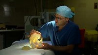 3D printing helps toddler receive adult kidney