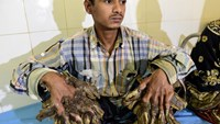 "Abul Bajandar, 26, dubbed ""Tree Man"" for massive bark-like warts on his hands and feet, sits at Dhaka Medical College Hospital in Dhaka on January 31, 2016. AFP/Munir Uz Zaman"