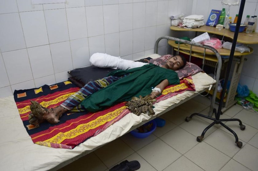 Bangladeshi Abdul Bajander, dubbed 'Tree Man', rests after surgery at the Dhaka Medical College Hospital on February 21, 2016. AFP/Munir Uz Zaman