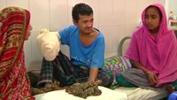 Bangladeshi 'tree man' gets surgery