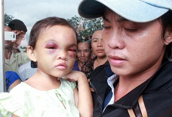 Tran Van To holds Tran Thi Kim Ngan, in his arms outside Binh Duong General Hospital on Monday. The child is being treated for multiple injuries allegedly inflicted by her mother and her lover. Photo: Do Truong