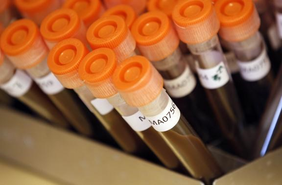 Test tubes filled with samples of bacteria to be tested are seen at the Health Protection Agency in north London in this March 9, 2011 file photo.