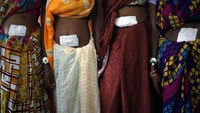 Women, who underwent surgery at a government mass sterilization camp, pose for pictures inside a hospital at Bilaspur district in the eastern Indian state of Chhattisgarh November 14, 2014.