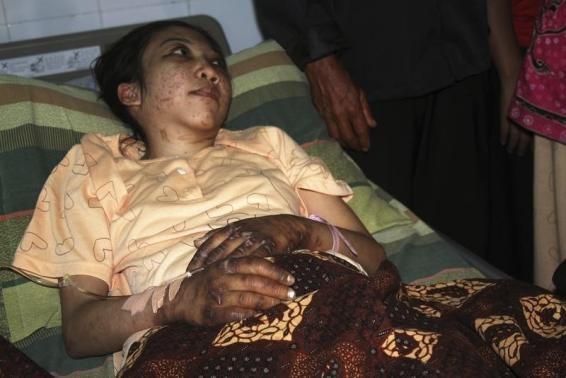 Indonesian domestic helper Erwiana Sulistyaningsih lies in a bed whilst being treated at a hospital in Sragen, Indonesia's Central Java province January 17, 2014.