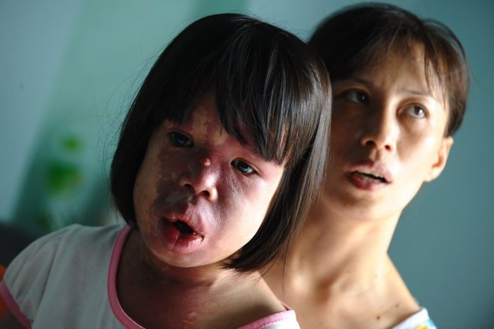 Suspected Agent Orange victim Nguyen Thi Hong Van and her mother Nguyen Thi Luu at their home. Photo: AFP
