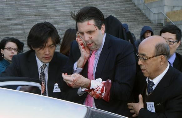 U.S. Ambassador to South Korea Mark Lippert leaves after he was slashed in the face by an unidentified assailant at a public forum in central Seoul March 5, 2015.