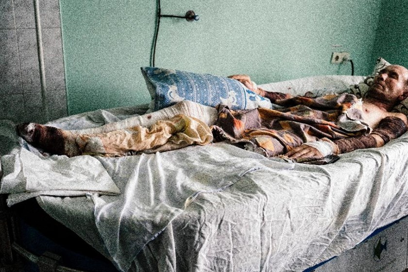 Picture taken on April 2, 2015, shows a wounded pro-Russian rebel lying in a bed in Donetsk hospital