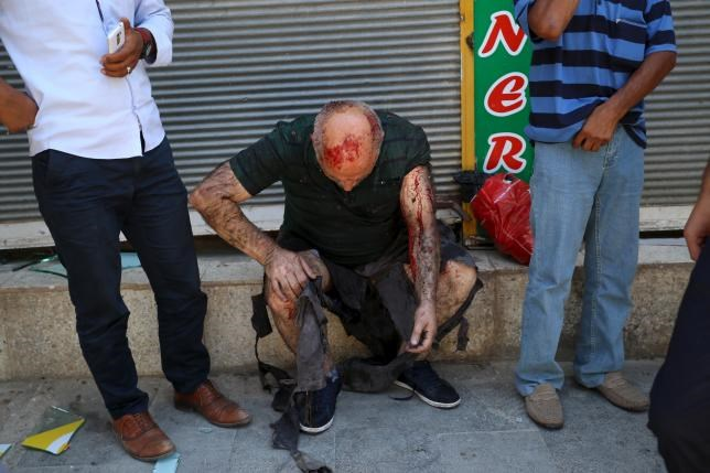 A wounded man sits on a step following an explosion in Suruc, in the southeastern Sanliurfa province, Turkey, July 20, 2015.