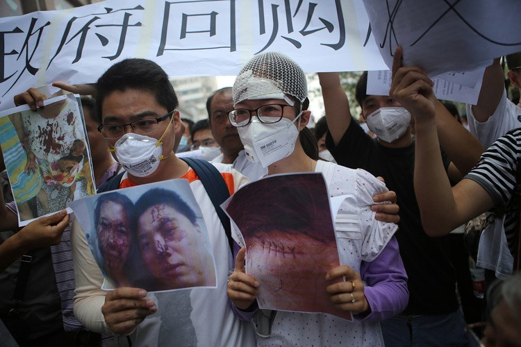 People injured in the explosions hold photos of their wounds in a protest outside a press conferences in Tianjin on Monday. Photo: AFP