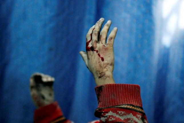 Blood covers the hands of an injured boy lying in a field hospital after what activists said were air strikes by forces loyal to Syria's President Bashar al-Assad in the Douma neighborhood of Damascus February 6, 2015.