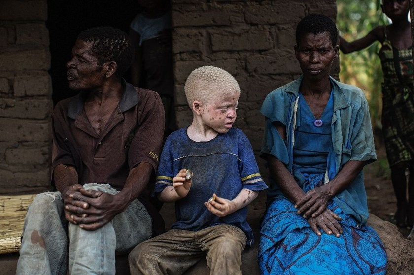 Up to 10,000 Malawians live with albinism, a hereditary condition that causes an absence of pigmentation in the skin