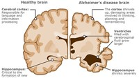 Immune system link to Alzheimer's disease: US study