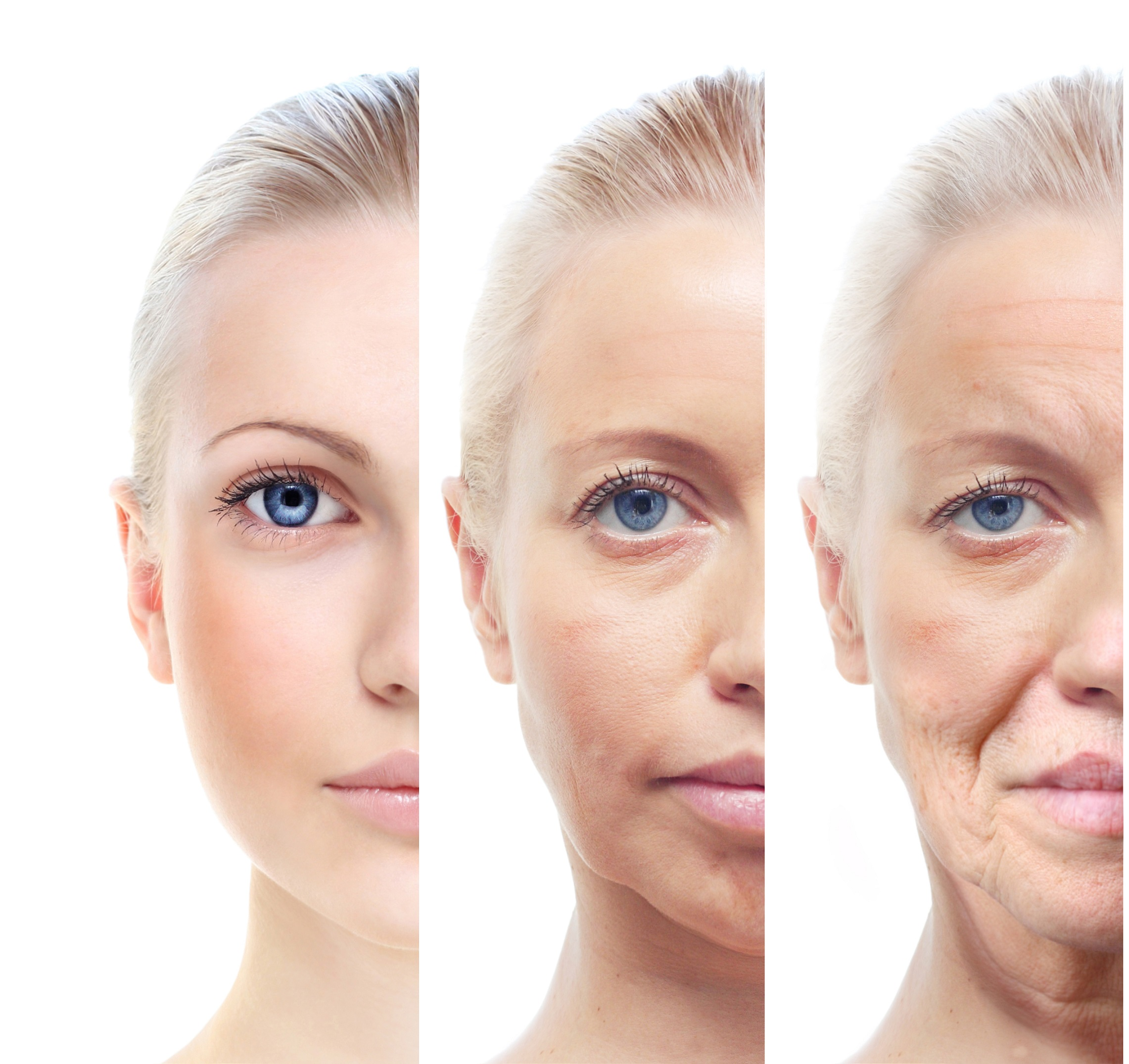 ageing of the human skin
