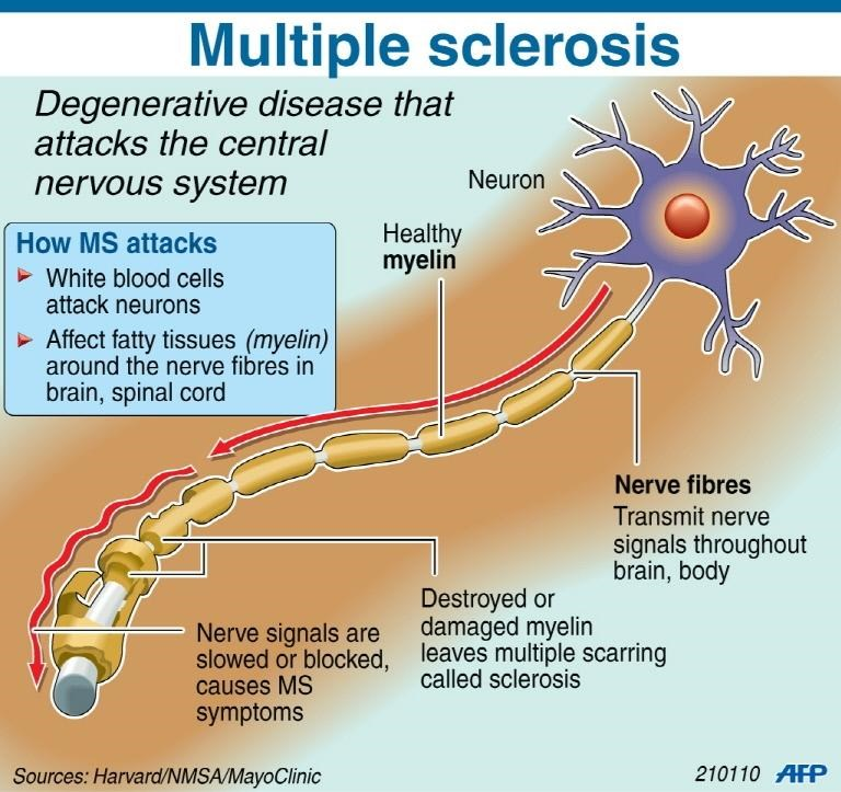 Fact file on the degenerative disease multiple sclerosis . Photo: AFP