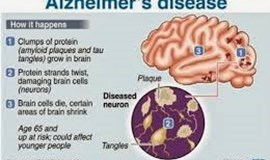 US deaths from Alzheimer's disease rise significantly