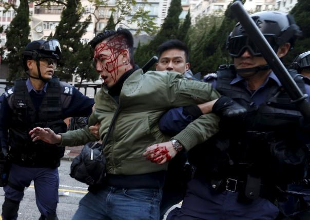 An unidentified injured man is escorted by riot police at Mongkok in Hong Kong, China February 9, 2016. Photo: Reuters/Bobby Yip