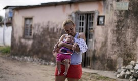 Study strengthens Zika-mirocephaly link, women and babies at risk