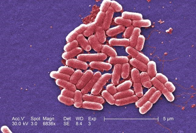 The mcr-1 plasmid-borne colistin resistance gene has been found primarily in Escherichia coli, pictured.REUTERS/COURTESY CDC