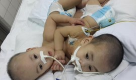 Conjoined twin dies after surgery in southern Vietnam