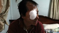 Young men throw stones at bus, nearly blind driver's eye in central Vietnam