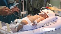 Vietnamese newborn survives after 11-cm stab through brain