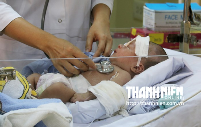 A photo taken on August 18, 2015 shows Duong Minh Phat, 21 days old, at the Ho Chi Minh City Children's Hospital No. 1. He now can breathe without support. Photo: Nguyen Mi