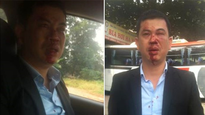 Photos on the Facebook page of Tran Thu Nam, one of the two lawyers who were attacked by a group of masked men, show his bleeding face after the attack
